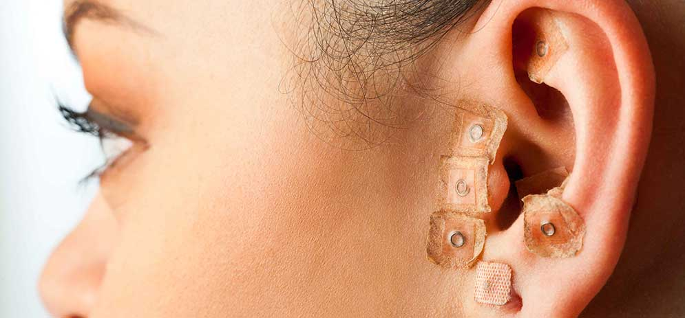 Pressure Point Therapy (Ear Acupuncture)